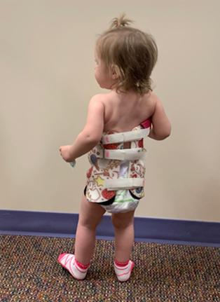Little girl in Rigo Cheneau 3D brace from behind