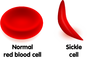 A sickle cell disease blood cell compared to a normal red blood cell.