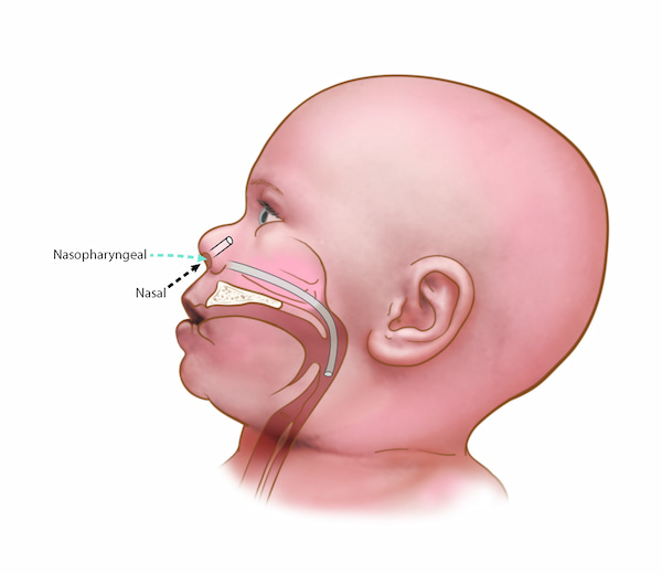 An illustration demonstrating nasopharyngeal suction on an infant.
