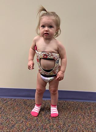 Little girl in Rigo Cheneau 3D brace from front