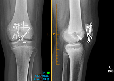 An x-ray of a shattered kneecap that was repaired with surgical screws, wires and sutures.