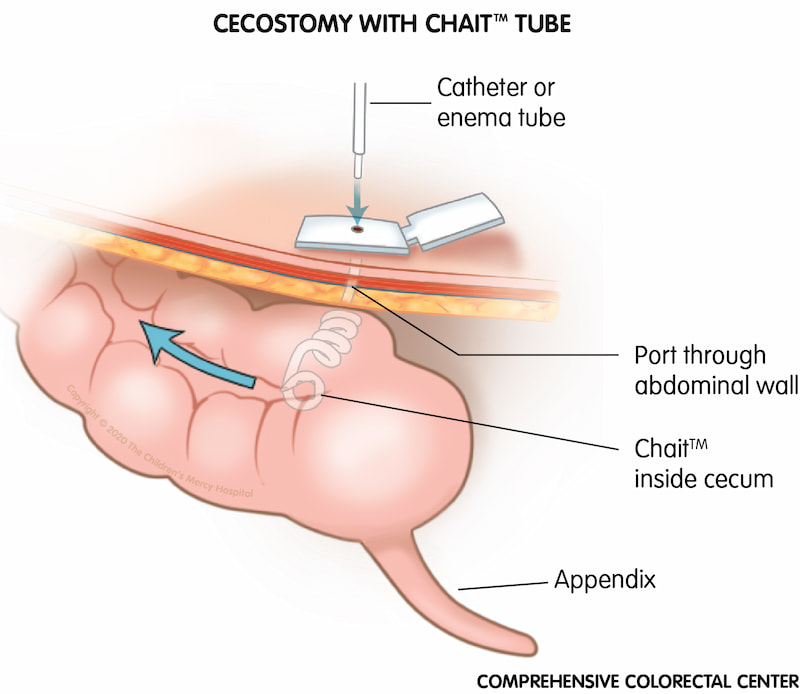 The Chait™ device can be used as a type of tube during cecostomy or appendicostomy (MACE/Malone) surgery. This device makes it easier to find the hole to perform the enema.