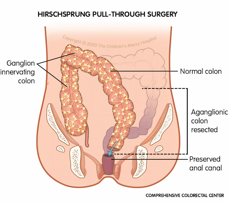 Hirschsprung pull-through surgery removes the portion of the colon that doesn't have ganglion cells and attaches the healthy part of the colon right above the anal canal.